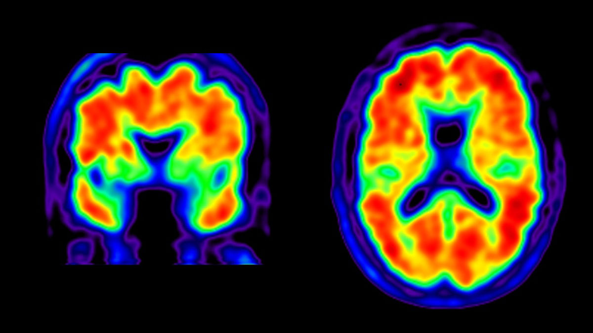 Alzheimer's Diagnosis, Management Improved by Brain Scans | UC San