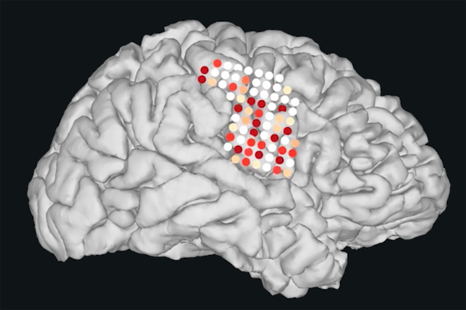 Synthetic Speech Generated from Brain Recordings | UC San ...