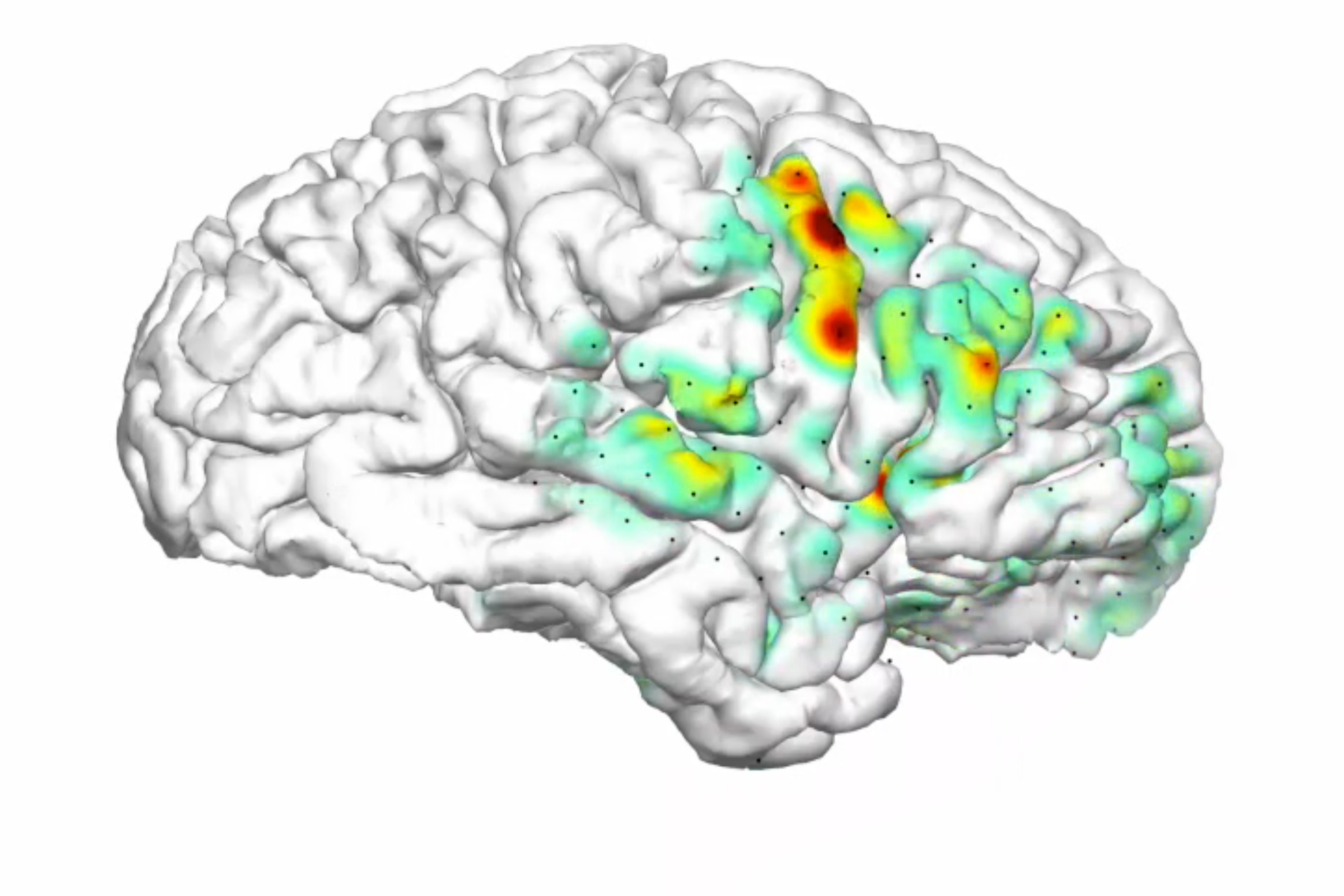 3-D 'Heat Map' Animation Shows How Seizures Spread in the Brains of Patients with Epilepsy