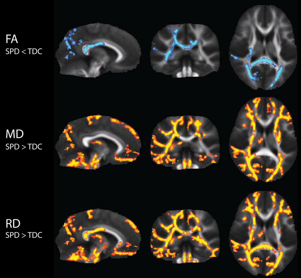 Autism Study Links Sensory Difficulties >> Brain S Wiring Connected To Sensory Processing Disorder Uc San