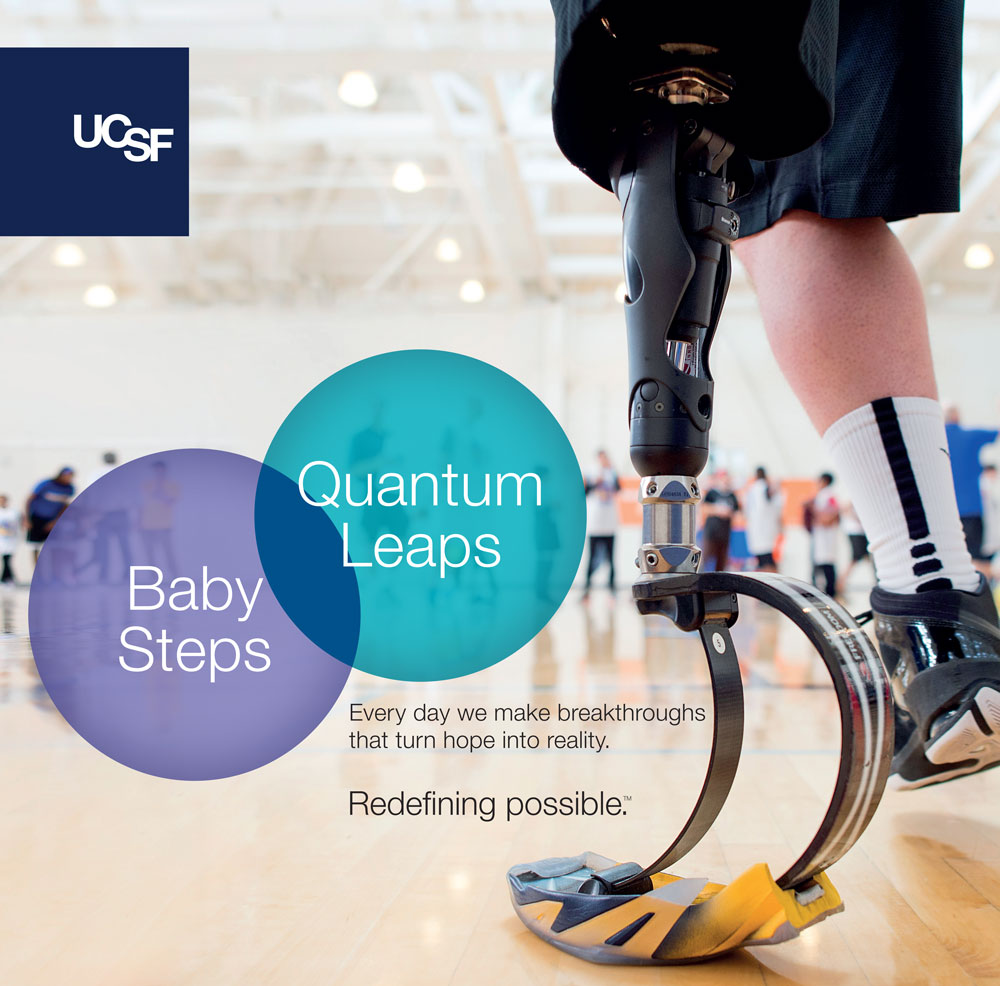 UCSF advertisement showing a closeup of an amputee's prosthetic leg. Text reads: Baby steps, quantum leaps.