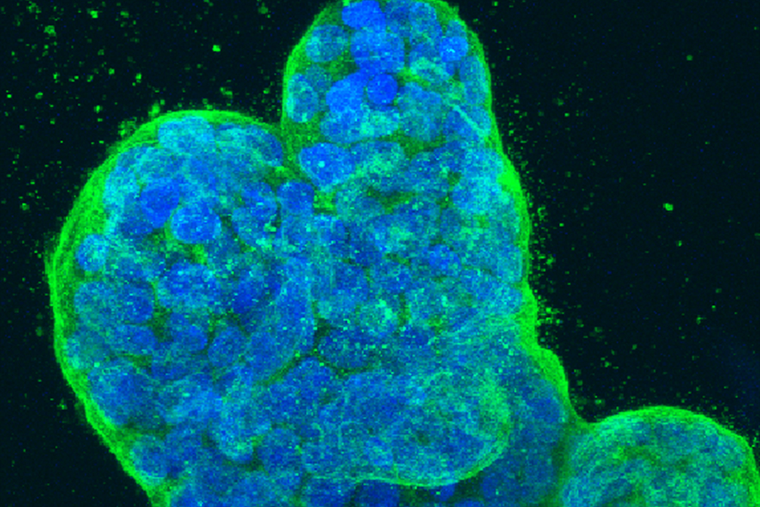 Cancer-Killing Combination Therapies Unveiled with New Drug