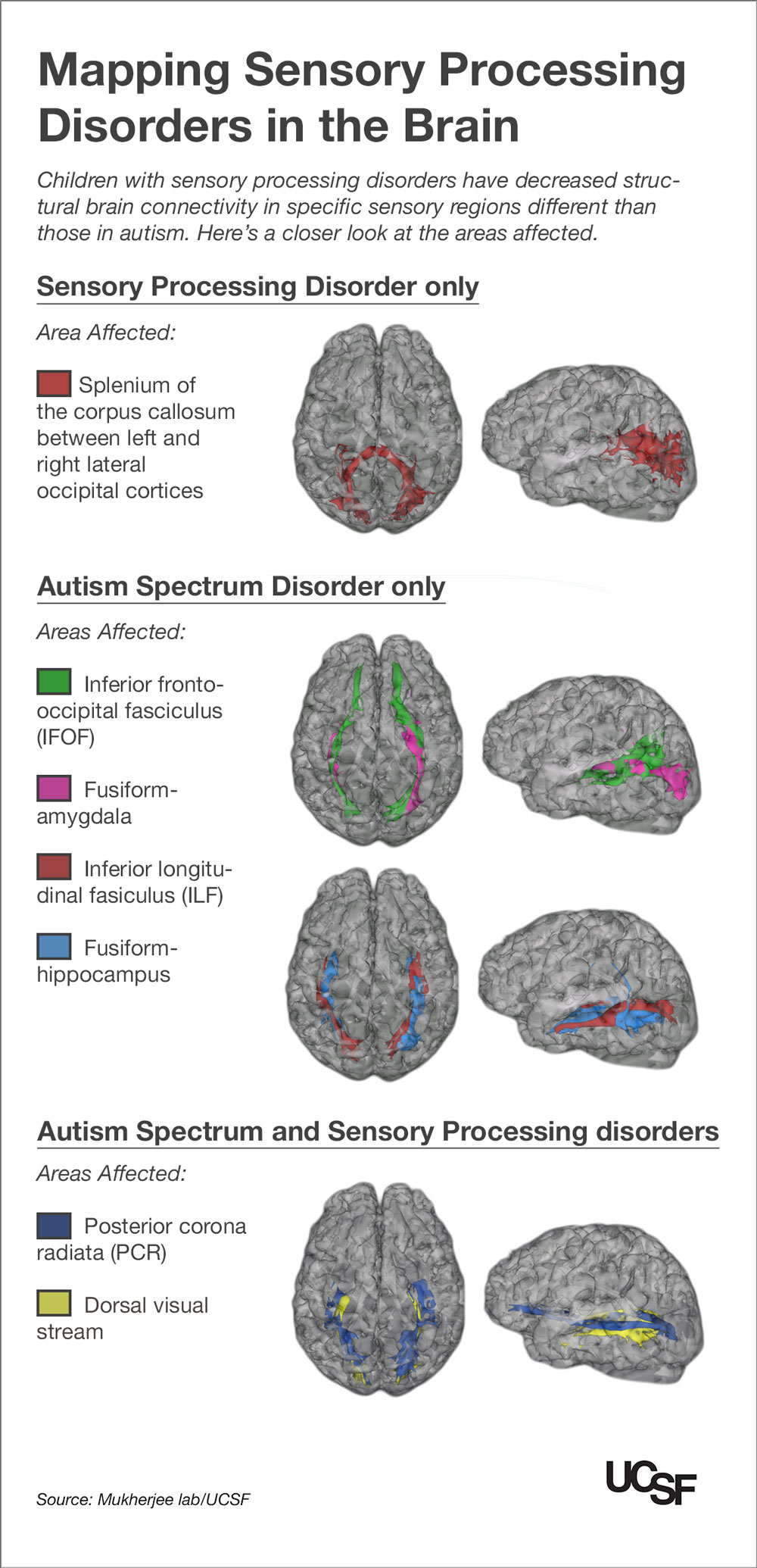 a neuropsychological research on the autistic brain Imaging studies to characterize the brains of asd across the human lifespan  results of structural  of brain connectivity in the neuropsychology of autism.