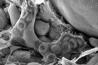An image obtained with a scanning electron microscope
