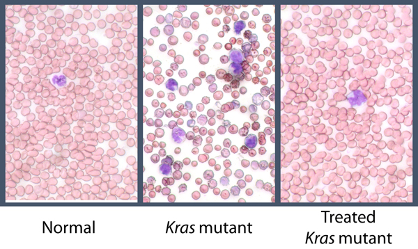 Kras Mutant Blood Cells