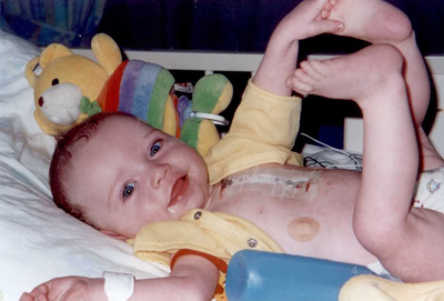 Sean White shortly after his open heart surgery to fix a congenital heart defect