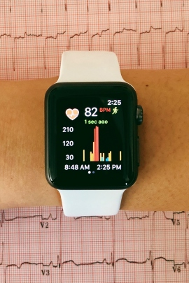Apple iWatch shows heart impulses. Credit: Gregory Marcus