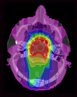 CT scan reveals radiation doses