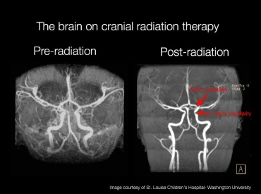 Scans of a brain pre- and post-radiation treatment
