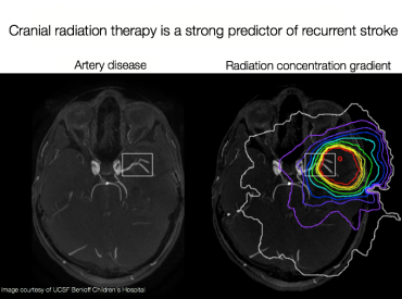 Map of targeted cranial radiation and constricted blood vessels