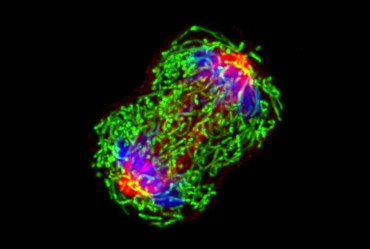 an image of triple negative breast cancer
