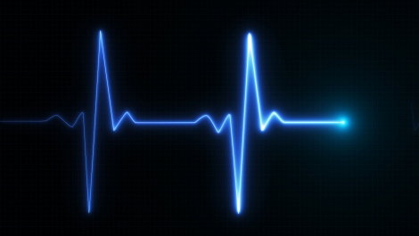AI is Quicker, More Effective Than Humans in Analyzing Heart