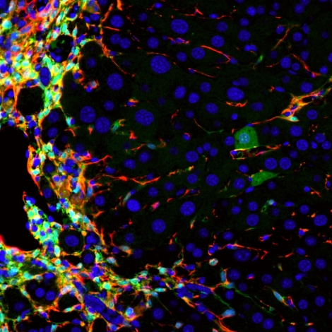 Researchers Convert Cirrhosis-Causing Cells to Healthy Liver Cells ...