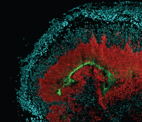 An image of tissue that's grown in a dish shows radial glia stem cells that are red, neurons in blue and the AXL receptor in green.