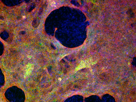 Cardiomyocytes reprogrammed from normal adult human skin samples