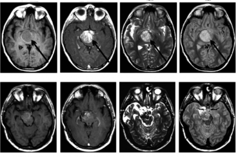 A brain scan of a pediatric patient with diffuse intrinsic pontine glioma