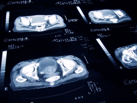 stock image of prostate cancer scans