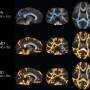 brain scans of children with sensory processing disorder