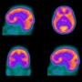 blood flow to the brain is shown from several angles in a SPECT scan