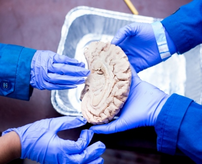 3 gloved hands touching a human brain