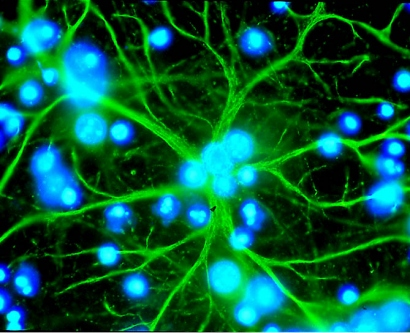 Image of an Astrocyte