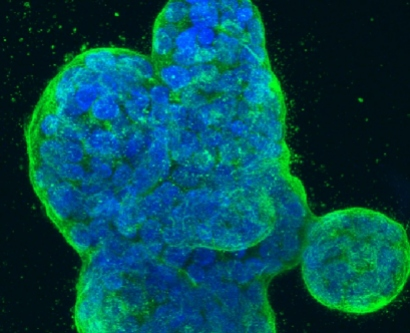 Three-dimensional culture of human breast cancer cells.