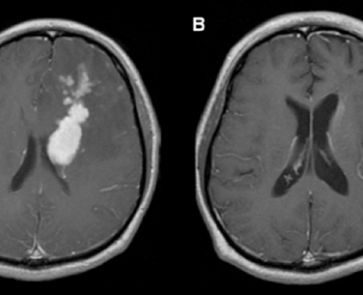 Brain scans of primary CNS lymphoma patient