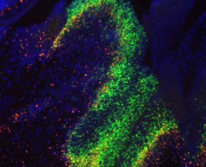 Fluorescent dyes track the presence of the RNA molecules and the genes they  affect in the developing mouse brain.