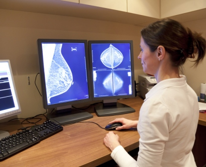 stock image of radiologist looking at mammogram
