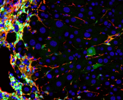 A microscopic image shows liver cells in a mouse that are damaged and others that have been regenerated