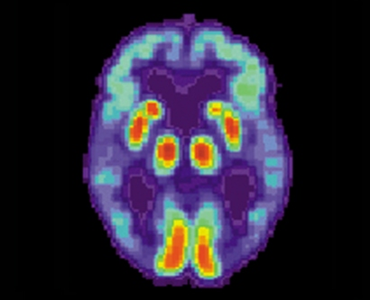 a brain scan shows colored areas of the brain in an Alzheimer's patient