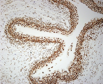 STAG2 expression in normal bladder tissue