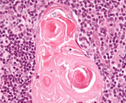 Science image of Hassall's corpuscles