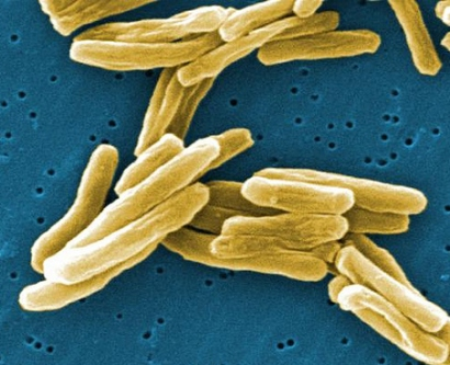 Image of Tuberculosis Cells
