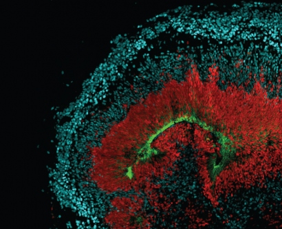 microscopic view of radial glia stem cells