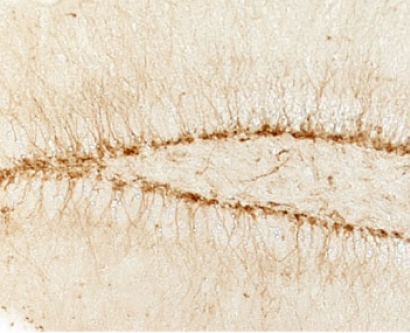microscopic image of neurons in the brain of a young mouse