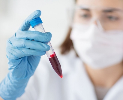 stock image of lab technician holding up a blood vial