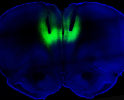 Laser light is used to modulate firing activity of neurons to regulate cocaine-seeking behavior in rats.