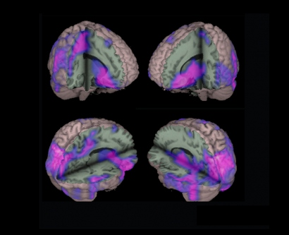 This brain scan shows significantly weaker connections throughout the brain of someone with epilepsy.