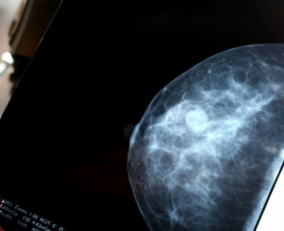 stock image of a person holding a breast scan