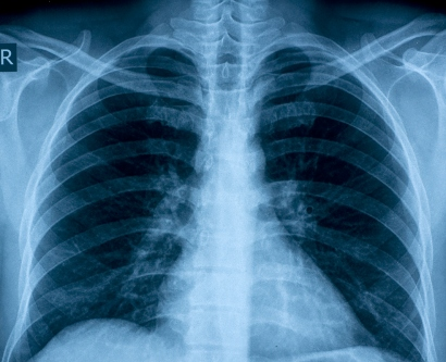 chest X-ray showing lungs