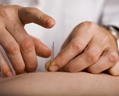 doctor tapping an acupuncture needle into a patient's skin