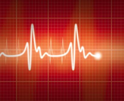illustration of an EKG