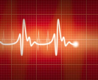 EKG illustration