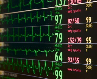 A stock image shows a hosptial monitor with several heart rates
