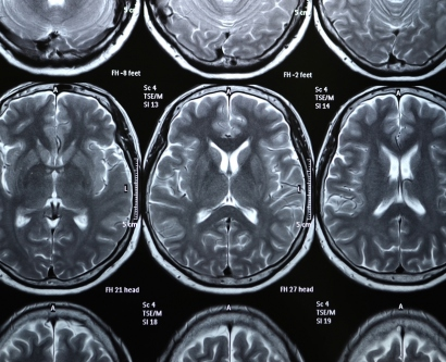 stock image of brain MRI scans