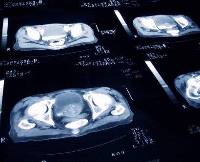 stock image of prostate scans