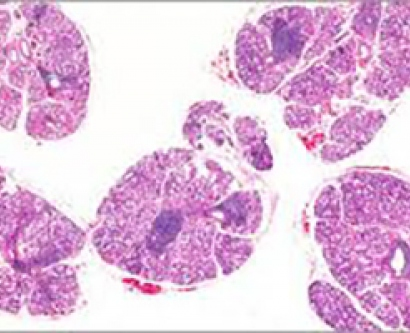 An image of a salivary gland with sites of inflammation indicative of Sjögren's syndrome