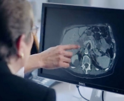 Margaret Tempero looks at an x-ray of a pancreas on a computer screen