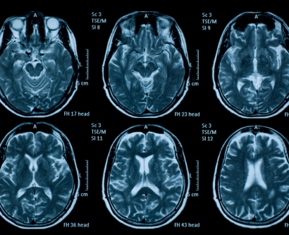 a stock image shows brain scans